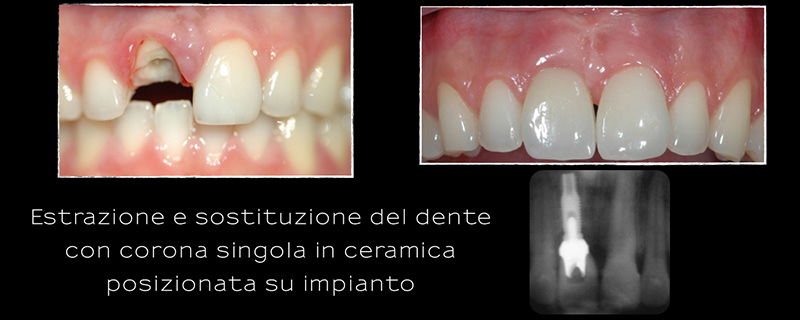 implantologia case study